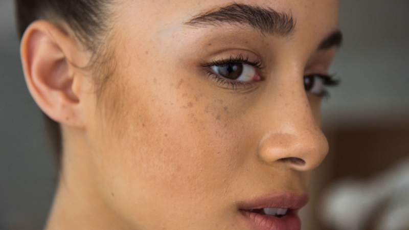 Hyperpigmentation in Darker Skin Tones: What Causes It and How Can I Treat It?