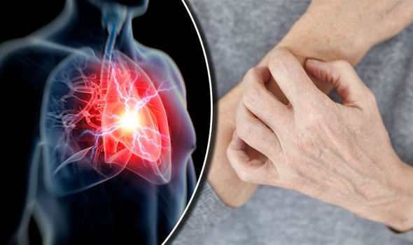 Is Your Skin Showing You Signs of a Heart Problem?