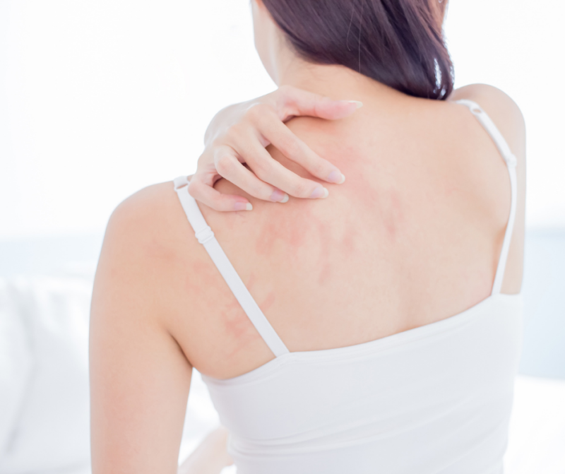The Different Types of Eczema and How to Treat Them